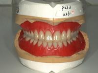 総入れ歯(具合い良く咬める)