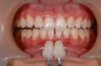 歯を白くする