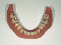 きれいな入れ歯