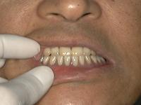 入れ歯挿入